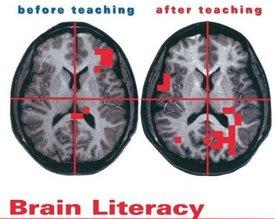 neurology and literacy